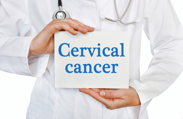 Cervical Cancer: What You Need To Know